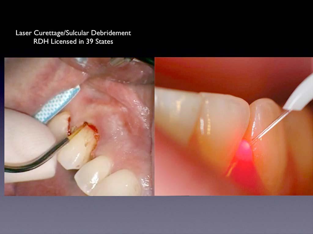 Dental Lasers For Sale Diode Laser Dental Dental Laser