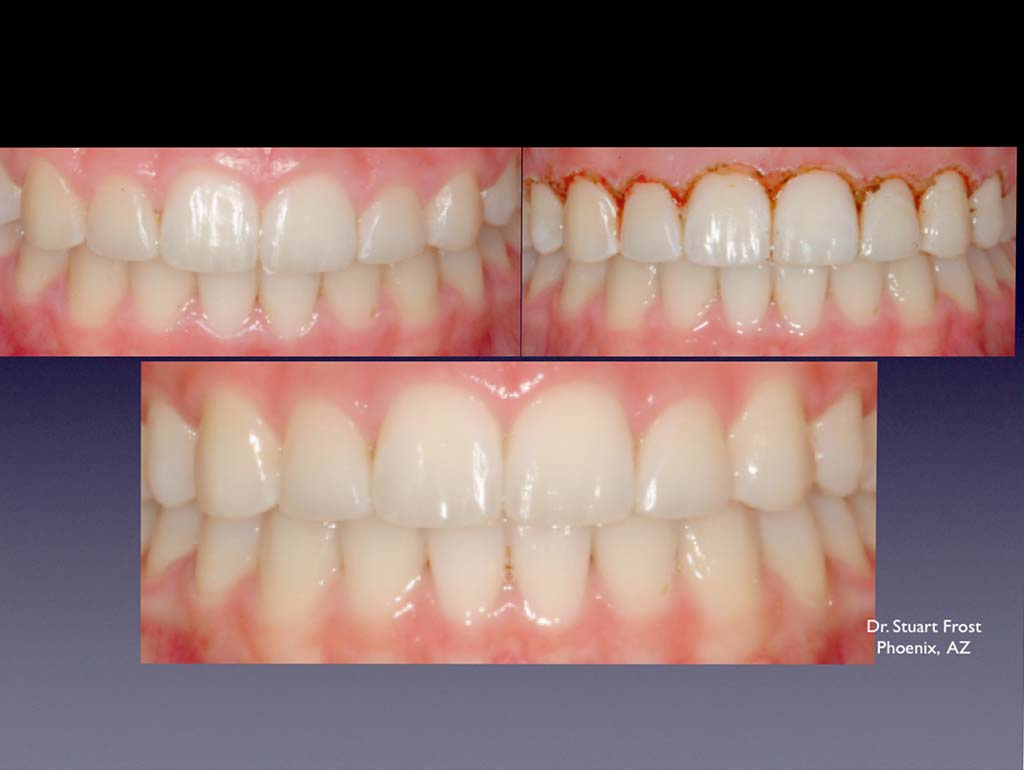 Gingival Recontouring