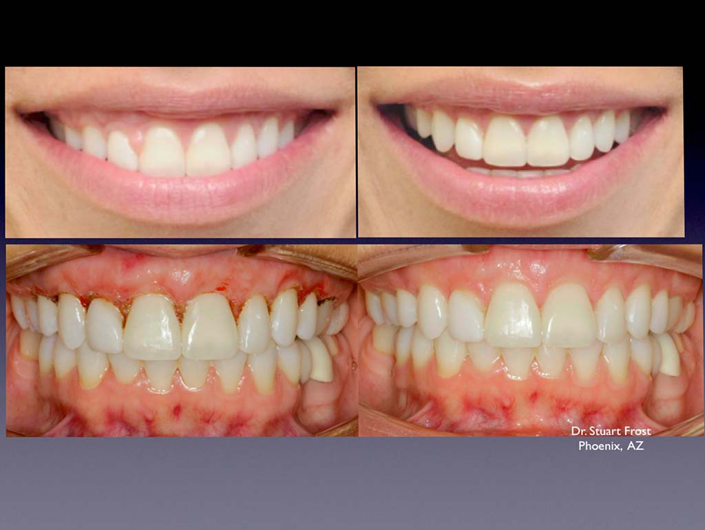 Gingival-Recontouring